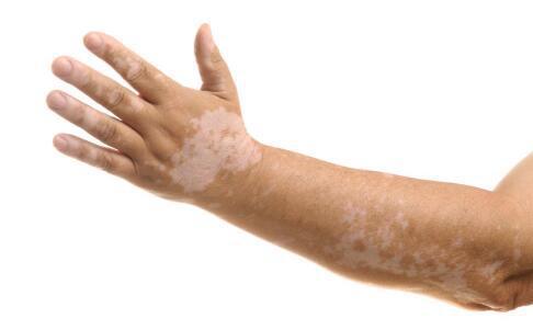 手臂白癜风有哪些早期症状?